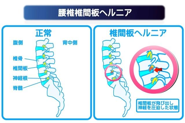 腰部椎間板ヘルニアの説明イラスト